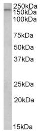 AP09444PU-N - CLIP1 / Restin