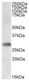 AP09448PU-N - TREML1