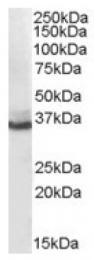 AP16485PU-N - AKR1C4
