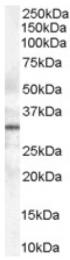 AP16476PU-N - Syntaxin 6 / STX6