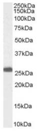 AP16473PU-N - PGRMC1