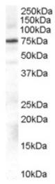 AP16462PU-N - Beta-ARK-1 / ADRBK1