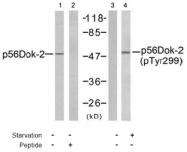 AP02521PU-S - DOK2 / p56 dok2