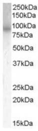 AP16454PU-N - PDE4B