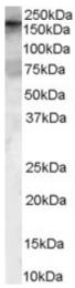 AP16452PU-N - ARHGEF5 / TIM