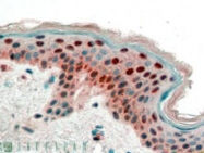 AP16443PU-N - 14-3-3 protein sigma / SFN