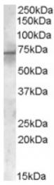 AP16430PU-N - PDK1