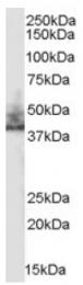 AP16425PU-N - SLC9A3R2 / NHERF2