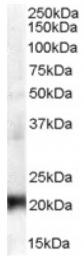 AP16424PU-N - CBX3