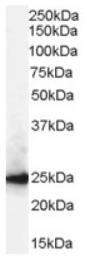 AP16423PU-N - CBX1