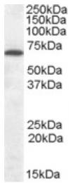 AP16416PU-N - Cannabinoid receptor 1