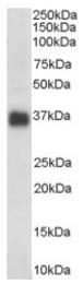 AP16411PU-N - Apolipoprotein J / Apo J
