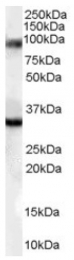 AP16408PU-N - LDB3