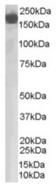 AP16393PU-N - Complement factor H (CFH)