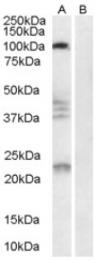 AP16368PU-N - Nogo 66 receptor