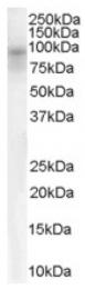 AP16364PU-N - DPP10 / DPRP3