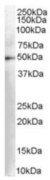 AP16360PU-N - AADC / DDC