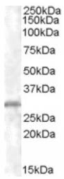 AP16349PU-N - CHMP5