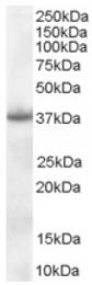 AP16341PU-N - Nucleophosmin