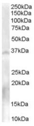 AP16339PU-N - NANOS1
