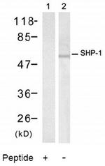 AP02795PU-N - PTPN6