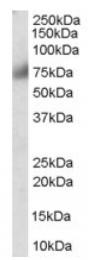 AP16326PU-N - FGFR1