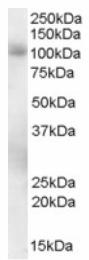 AP16325PU-N - PDE5A