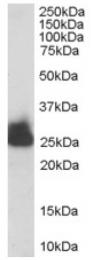 AP16324PU-N - Triosephosphate isomerase (TPI1)