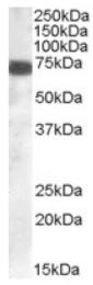 AP16323PU-N - ZDHHC13
