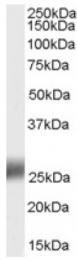 AP16322PU-N - SRD5A2
