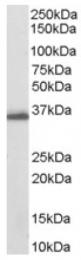 AP16321PU-N - AKR1C3 / DDH3