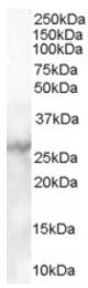 AP16303PU-N - Mannan Binding Protein