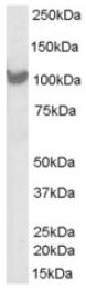 AP16301PU-N - PSMD2 / TRAP2