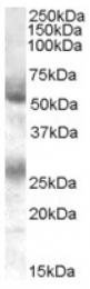AP16299PU-N - FLVCR1