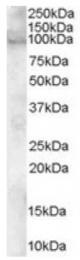 AP16288PU-N - ADAM12 / MLTN