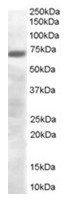 AP16286PU-N - PRDM4 / PFM1