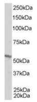 AP16283PU-N - RXR-beta / RXRB