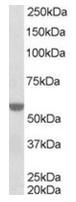 AP16282PU-N - RXR-alpha / RXRA