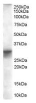 AP16277PU-N - FHL1