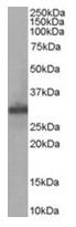 AP16276PU-N - FHL1