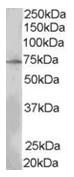AP16263PU-N - SH2B3