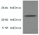 SP5364P - PSME1