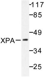 AP06479PU-N - XPA / XPAC