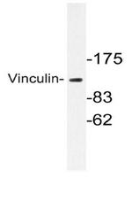 AP06605PU-N - Vinculin (VCL)