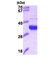 AR09369PU-L - Heme oxygenase 2 (HMOX2)