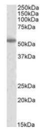 AP09527PU-N - Tyrosine 3-monooxygenase (TH)