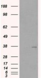 AP16451PU-N - TIMD3 / HAVCR2