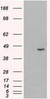 AP16478PU-N - 3-beta-HSD1 / HSD3B1
