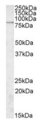 AP09526PU-N - SGSM3