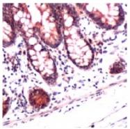 AP09583PU-N - Stanniocalcin 2 / STC2